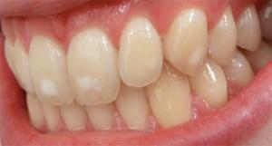Mild Dental Fluorosis
