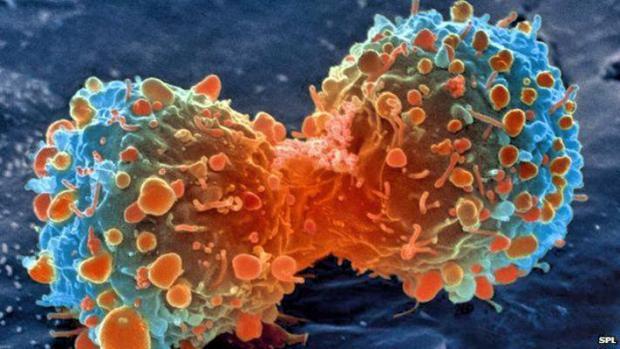 CANCER 1_Fotor