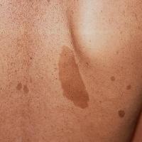 Crecimiento o cambio de color de lunares en la piel: atención