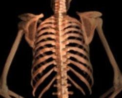 Kości 11