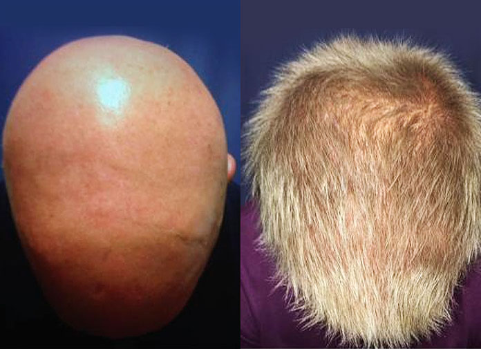 FDA Approved Drug Cured Patients With Alopecia Areata
