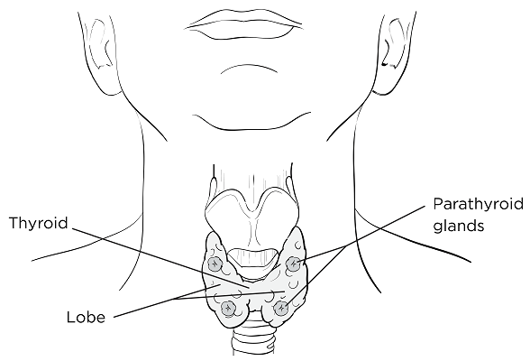 Thyroidectomy case study nursing