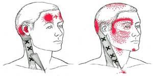 Cursus Triggerpointtherapie: Introductie en hoofdpijngerelateerde aandoeningen