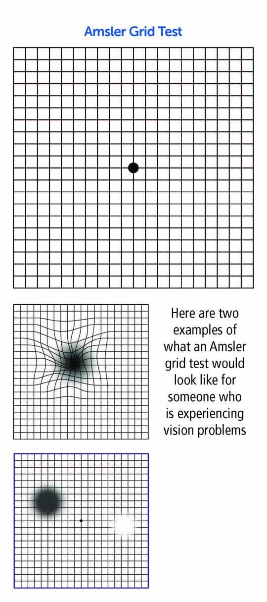 Amsler chart pdf