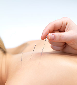 acupuncture-3