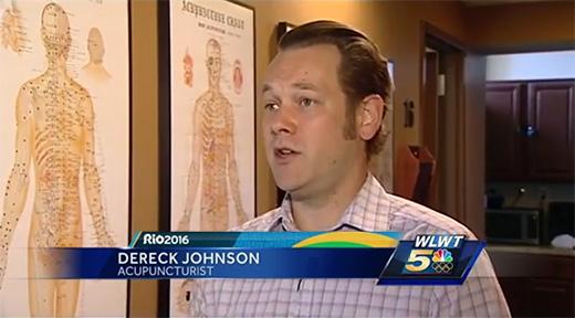 derek-johnson-acupuncturist-cupping-wlwt