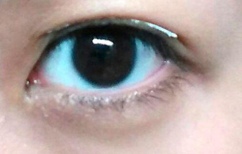 Double Eyelid 8