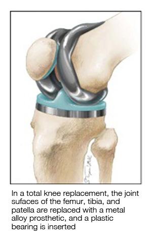 Types of Knee Surgery  MU Health Care