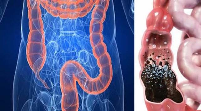 residuos_acumulados_intestino