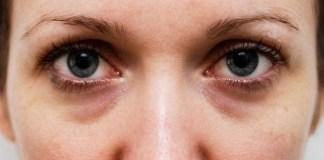 Saiba como acabar com as olheiras apenas com alguns cuidados