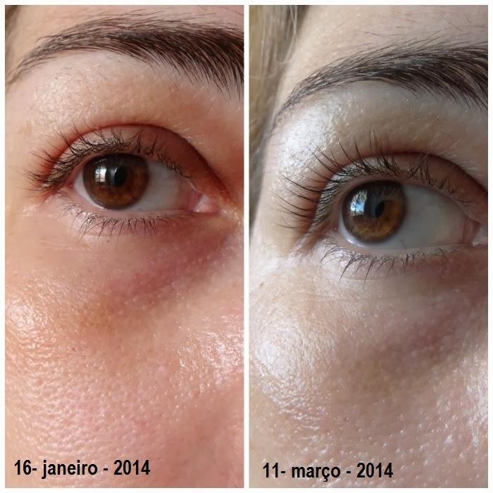 Vichy Liftactiv Serum 10 Olhos e Cìlios resenha antes e depois