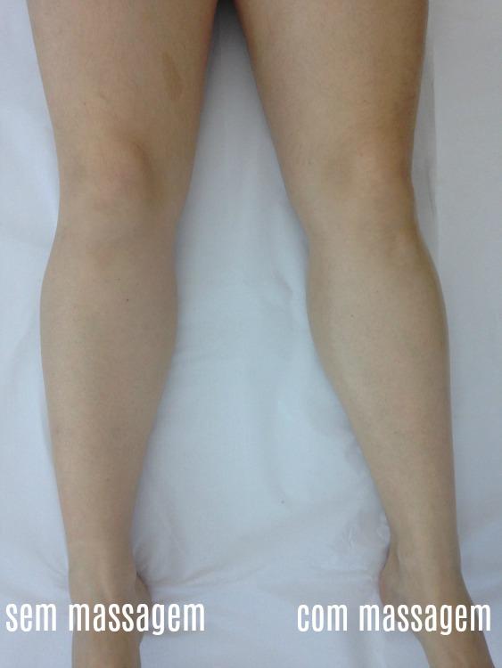 massagem Renata França antes e depois