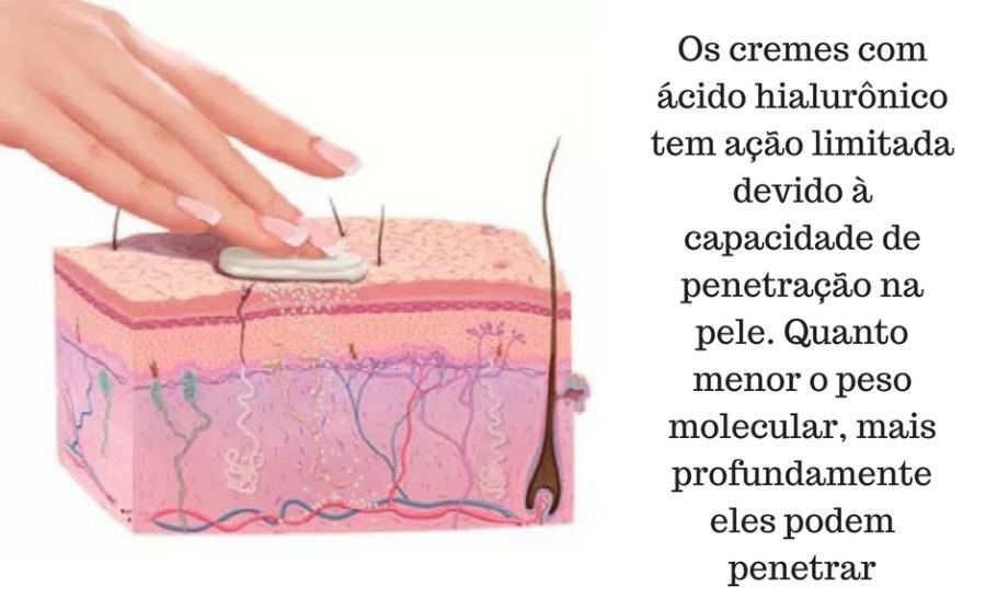 Ácido hialurônico na pele pode preencher rugas?