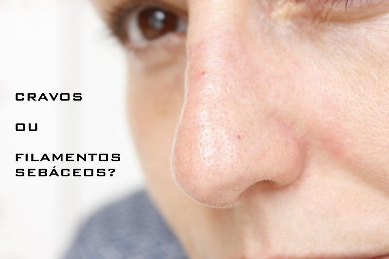 Cravinhos no Nariz: como deixar o nariz limpinho, sem pontos pretos!