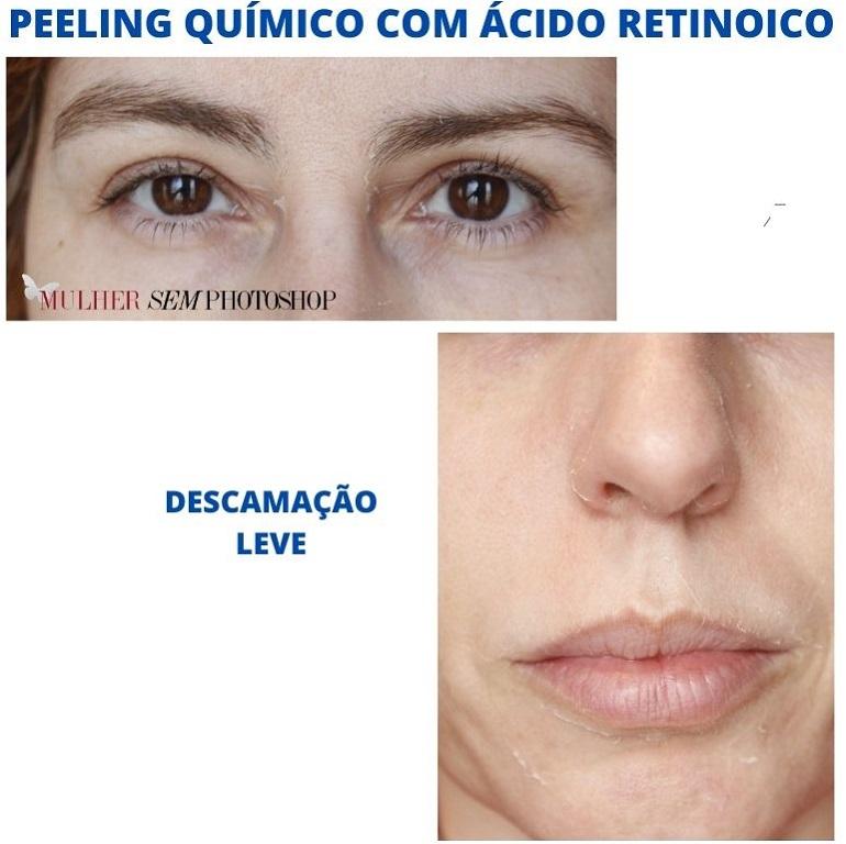 peeling quimico com ácido retinoico resenha