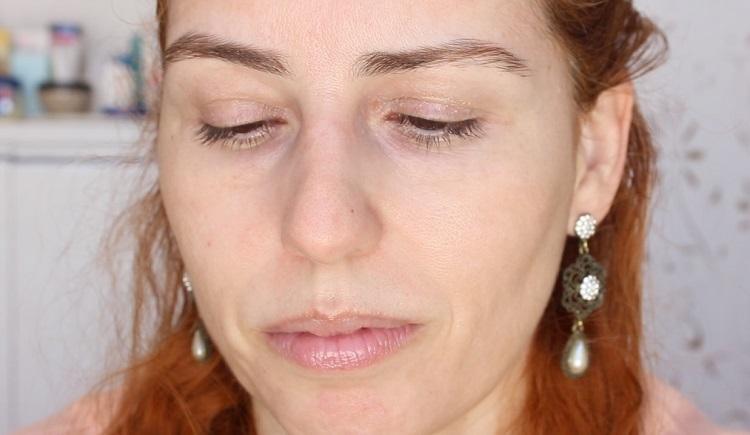 pos peeling quimico com acido retinoico