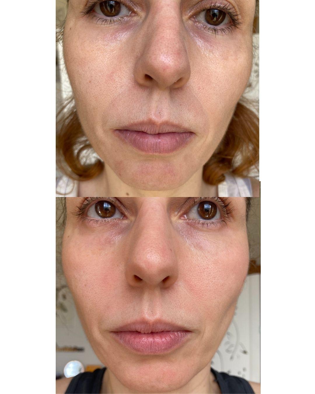 Bisyou Preechedor Facial antes e depois