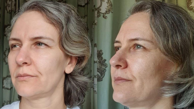 Bisyou Preenchedor Facial pele madura antes depois