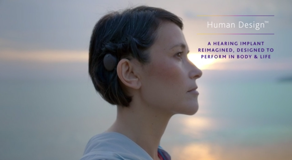 FDA clears Cochlear's innovative new Osia® 2 hearing ...