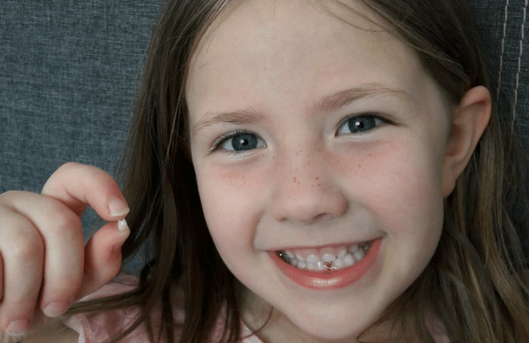Living Arrows 22/52 – Amy has lost her first tooth