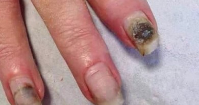 Acrylic And Gel Nail Can Be Very Dangerous