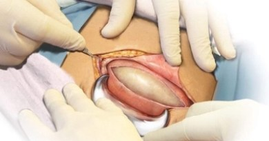 20 Things You Would Only Know If You've Had A C-Section