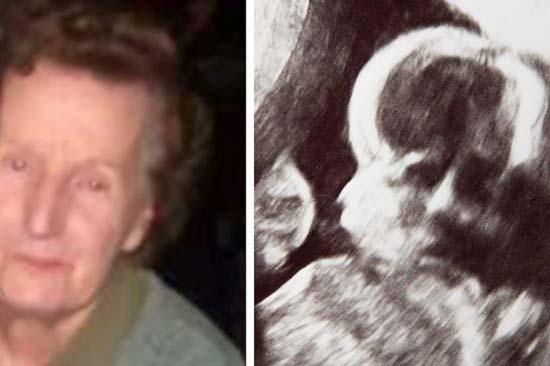 Rostro fantasmal difunta abuela ecografía