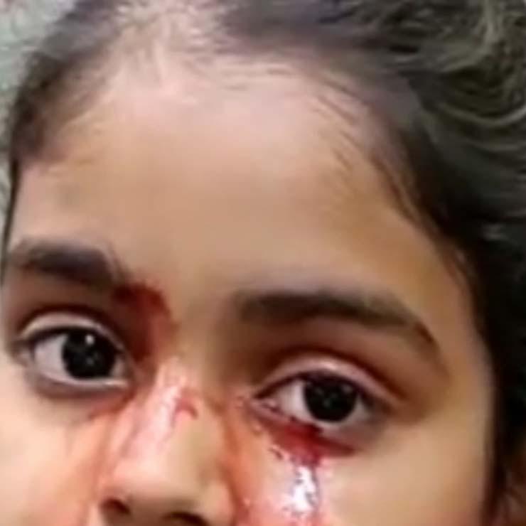Une fillette de 11 ans pleure du sang - Une fillette de 11 ans pleure du sang et les médecins ne trouvent aucune explication