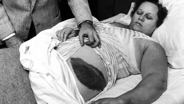 La Única persona que Sobrevivió al Impacto de un Meteorito