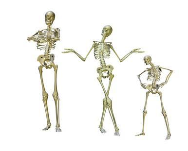 Osteoporose: Ursachen, natürliche Heilmittel und Lebensmittel