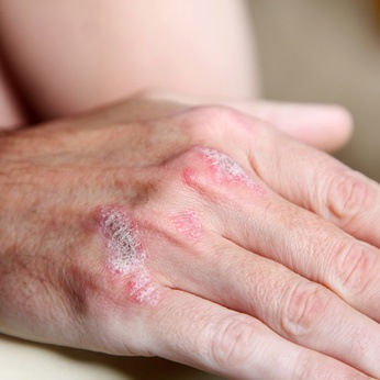 Lichttherapie gegen Psoriasis