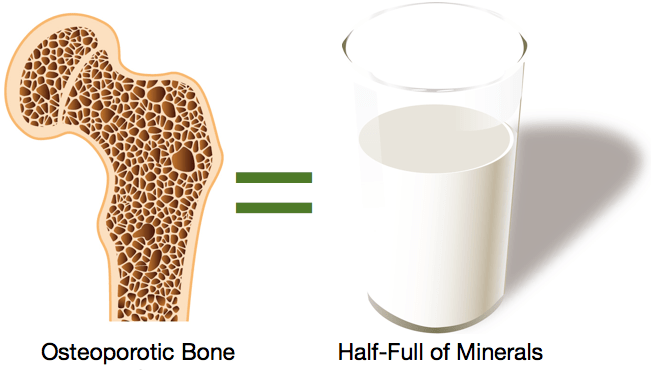 www.muscletesting.com:osteoporosis 2