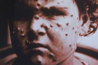 A local smallpox victim, late 1960s. Photo; ABC.