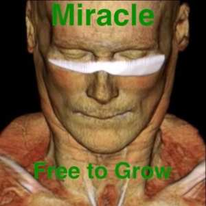 A Miracle Man Gives True Meaning To Free To Grow