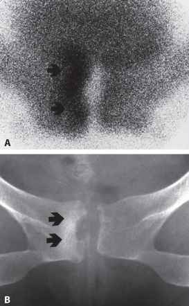 Condensing Osteitis of the Clavicle  Intense Tracer
