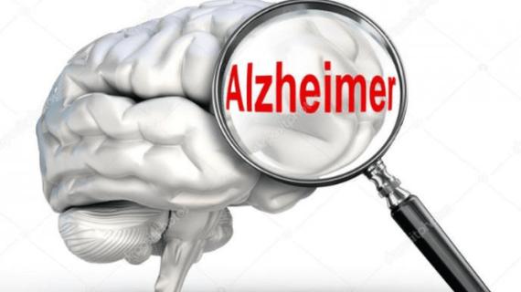 Pengertian, Pencegahan dan Penyebab Alzheimer