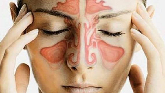 Waspada! Penyebab Sinusitis, Nomor 4 Fatal