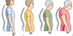 gejala osteoporosis