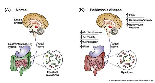 Prebiyotik ve parkinson