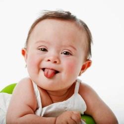 Ketojenik diyet otizmli bebek