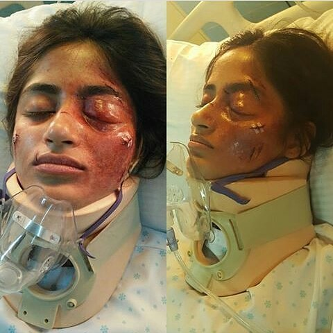 Sajal Ali Accident News