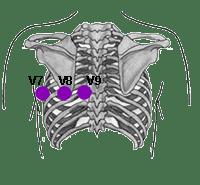 Electrodos de Derivaciones Posteriores