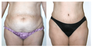 Sex After Your Tummy Tuck | J, If your recovery is smooth and uncomplicated, Brian Boyd M.D.