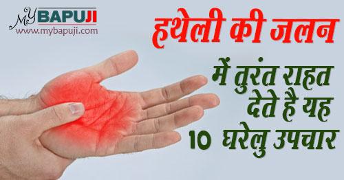 hatheli ki jalan dur karane ke upay in hindi