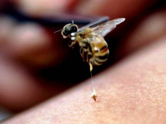 Image result for bee sting