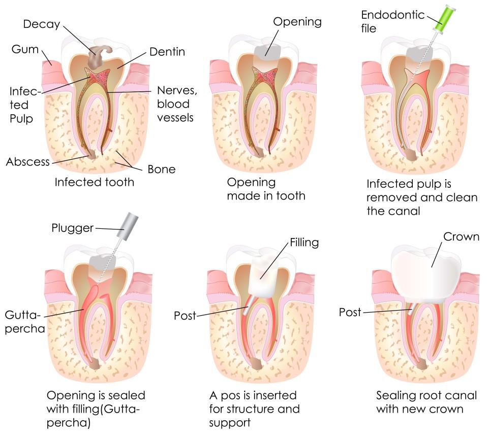 Root Canal Orem Ut Canyon Dental Best Dentist In Orem Utah