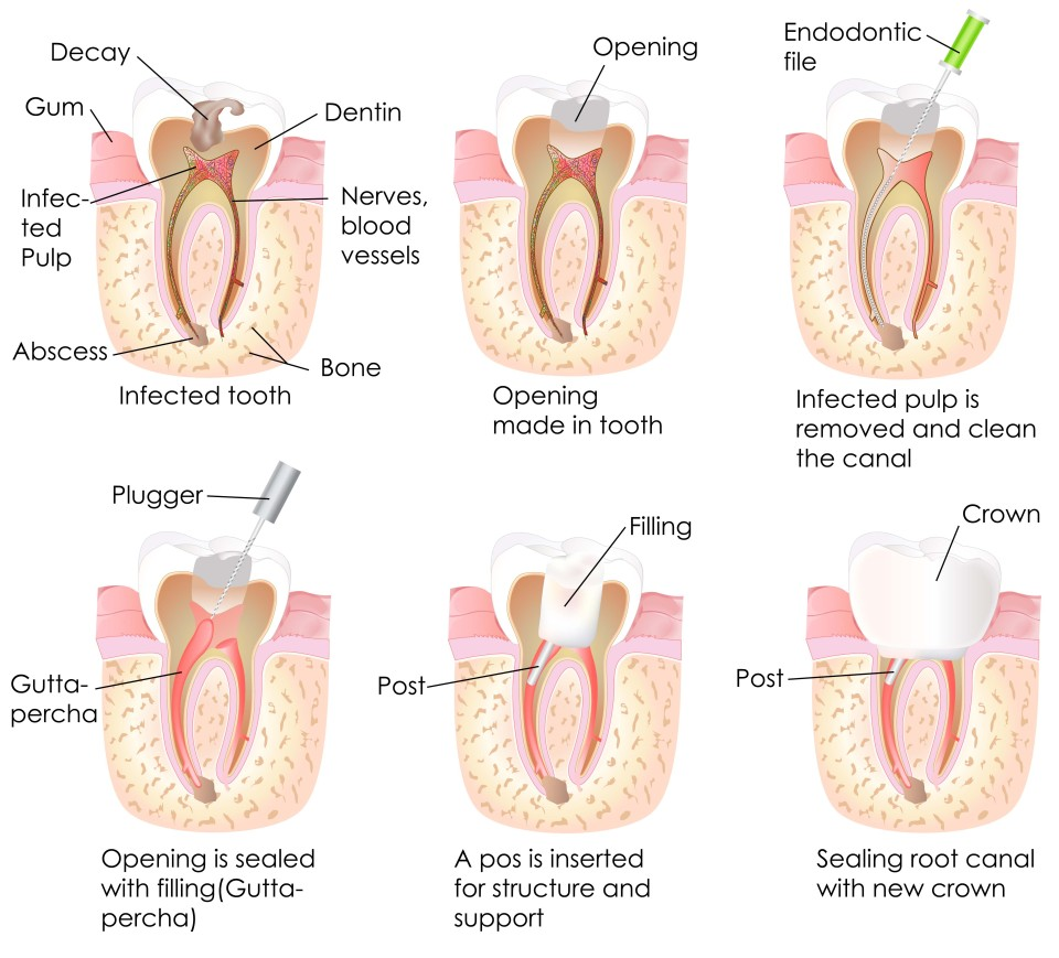Root Canal Orem UT | Canyon Dental - Best Dentist In Orem, Utah