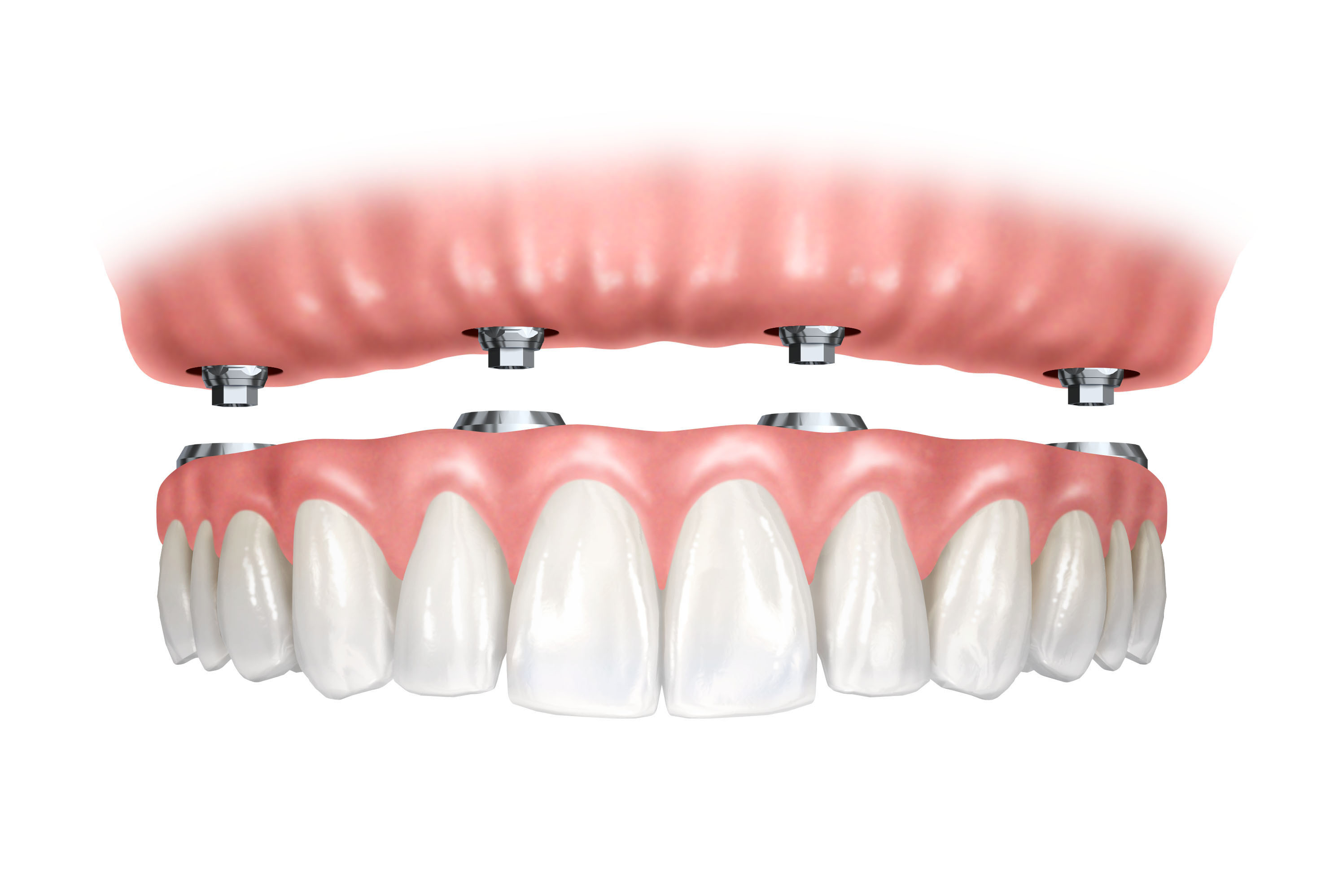 Dentures Canyon Dental Best Dentist In Orem Utah