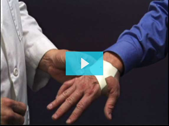 Natural Carpal Tunnel Relief  The Carpal Solution