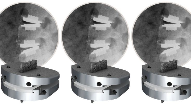 Centinel Spine Continues To Innovate in Total Disc Replacement Through First Case in U.S. With Angled Implants